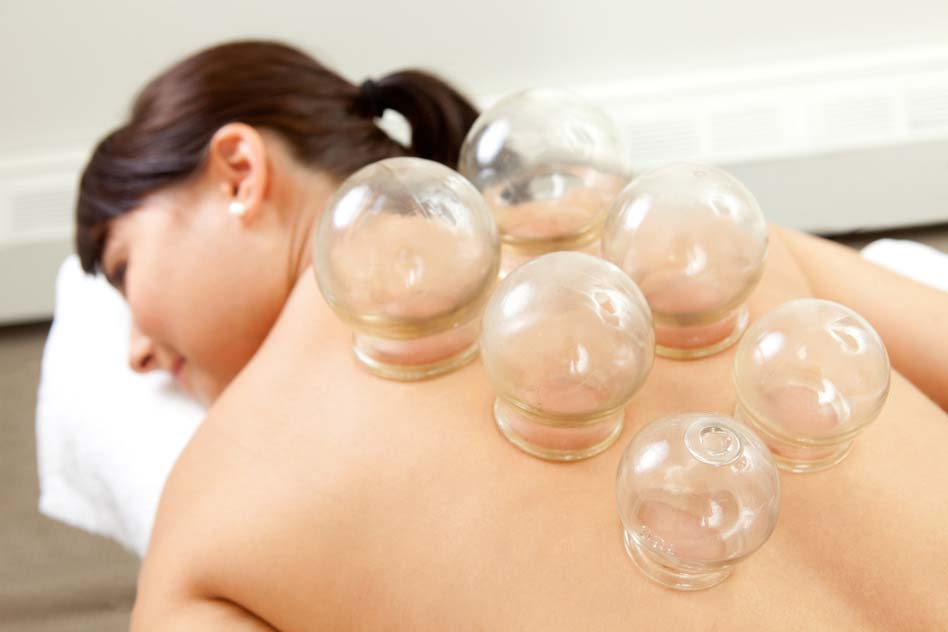 Detail of Woman with Acupuncture Cupping Treatment